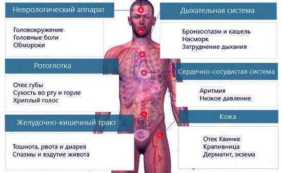 симптомы аллергии у человека
