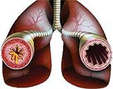 сужение бронхов при астме
