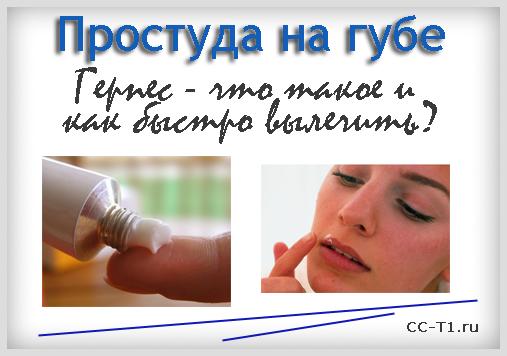 Что такое простуда на губах