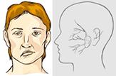 инсульт - перекошенное лицо как признак