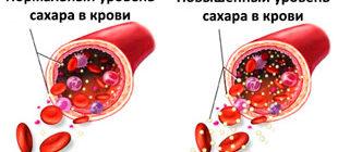 норма сахара в крови и повышенный уровень