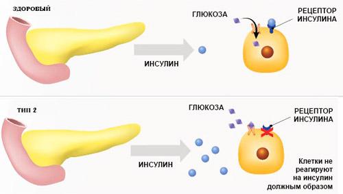 усвоение глюкозы здоровым организмом и при диабете 2 типа