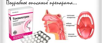 Тонзилотрен - при ангине и хроническом тонзиллите