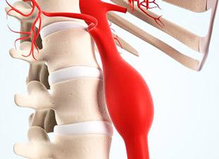 схема аневризмы брюшной аорты