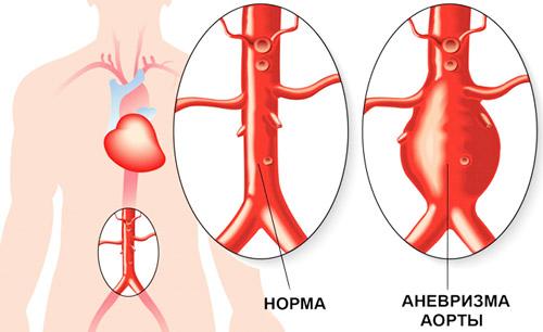 нормальная аорта и с аневризмой