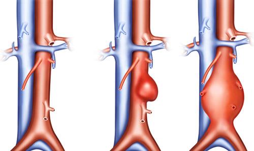 здоровая аорта и разновидности аневризмы