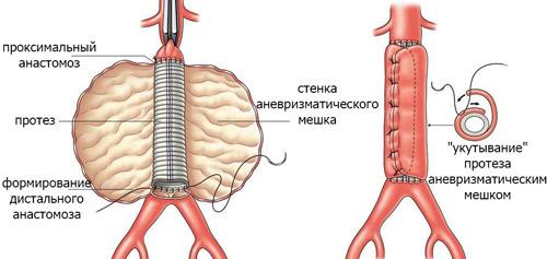 схематический рисунок проведения операции