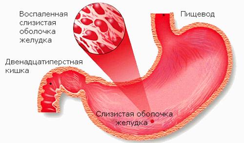 воспаление слизистой оболочки желудка при гастрите
