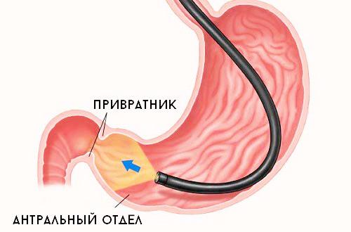 эндоскопия антральный отдела на предмет заболевания