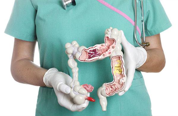 Пластмассовый макет строения аппендикса в руках у врача
