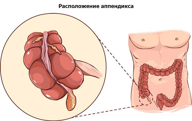 анатомическое расположение аппендикса
