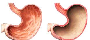здоровый желудок и с гастритом