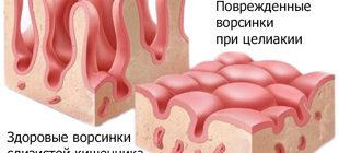 здоровые и поврежденные ворсинки кишечника при целиакии