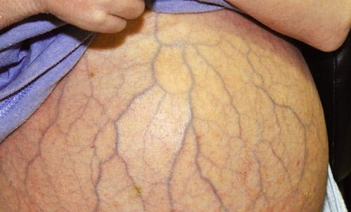 Варикоз сосудов брюшной полости голова медузы