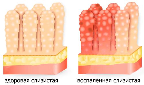 воспаление слизистого эпителия 12-перстной кишки