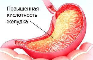 повышенная кислотнось в желудке причина гастрита