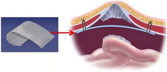 сетчатый протез для лечения грыжи брюшной стенки