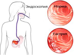 снимок здорового желудка и с гастритом