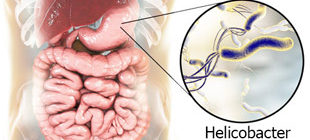 бактерии H. pylori в желудке как причина гастрита