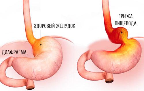 здоровый желудок и с грыжей пищевода
