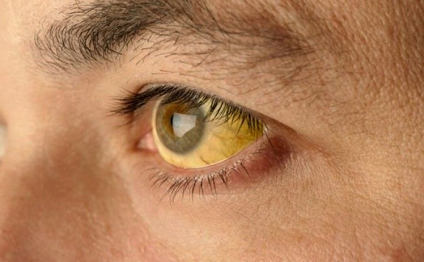 пожелтение склеры глаза