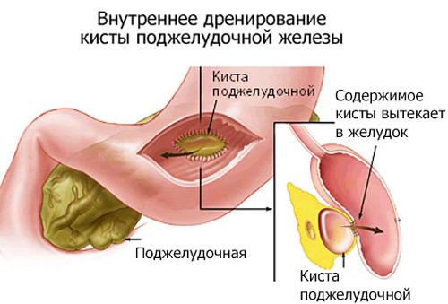 лечение с помощью дренажа кисты
