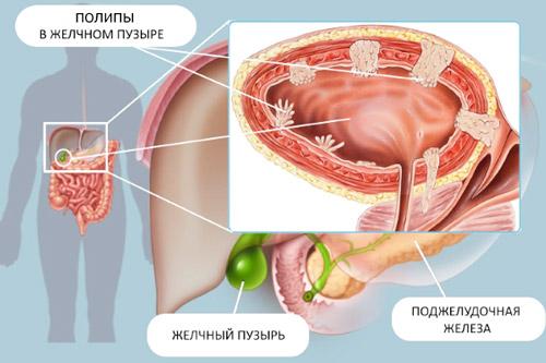 анатомия тела и разрастание полипов