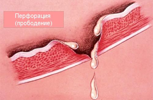 перфорация (прободение) стенки желудка
