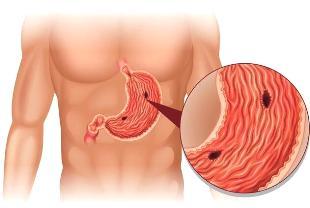 прободная язва желудка