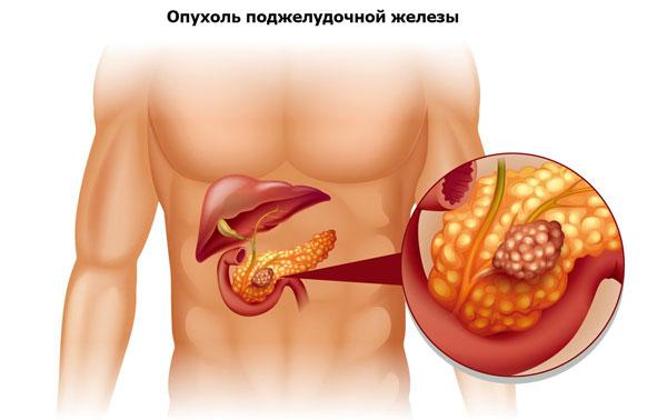 опухоль поджелудочной железы как причина пупочной боли
