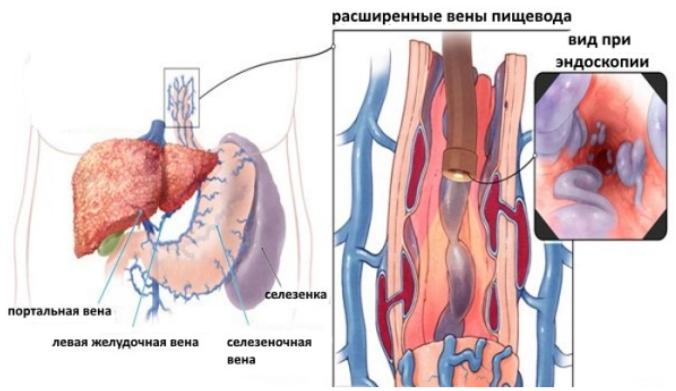 вид при эндоскопии расширенные вены пищевода