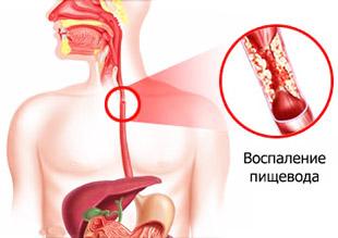 воспаление пищевода при рефлюксе