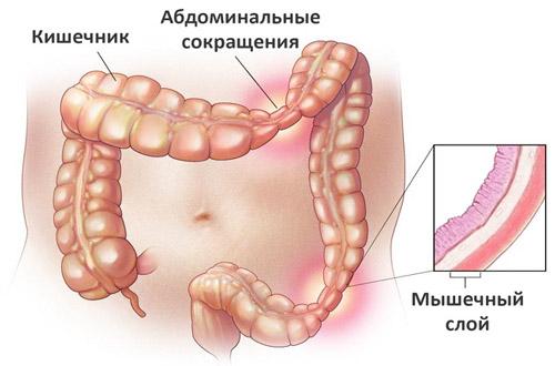 развитие синдрома раздраженного кишечника