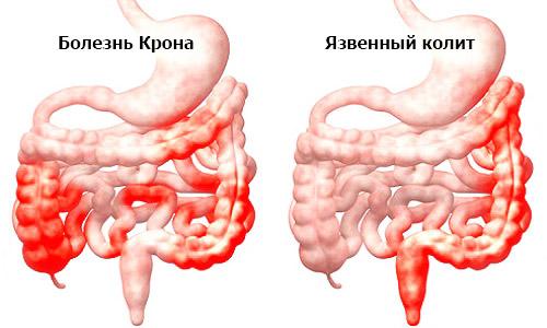 воспалительные поражения кишечника