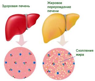 здоровая печень и с жировым гепатозом