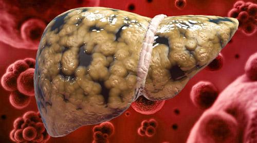 жировая болезнь печени с новообразованиями
