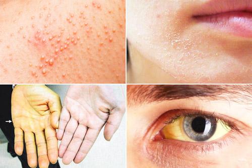 возможные изменения внешности при заболевании
