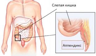 анатомическое расположение аппендицита