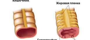 здоровый кишечник и пораженный болезнью Крона