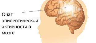 очаг эпилептической активности в мозге