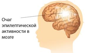 Что провоцирует эпилептический приступ