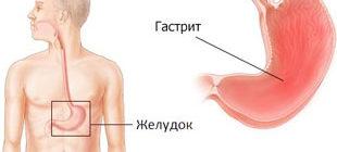 воспалительные патологии слизистой желудка