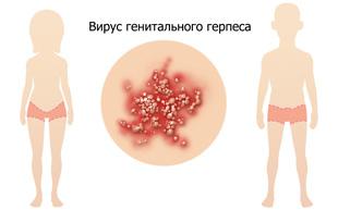 проявление вируса генитального герпеса у людей обоих полов