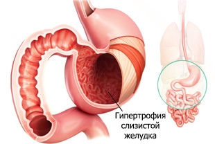 Гипертрофия слизистой желудка при гастрите