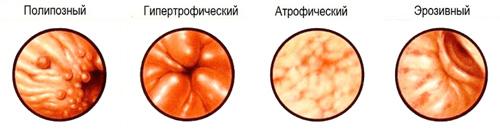 разновидности деформации слизистой желудка