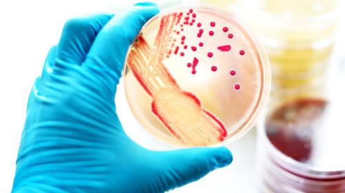 развитие посева бактерии в лаборатории