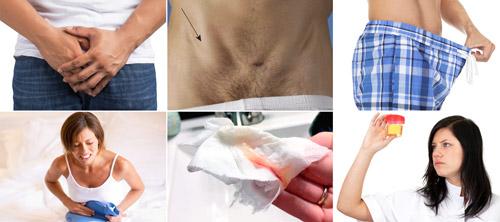 симптомы гонореи у мужчин и женщин