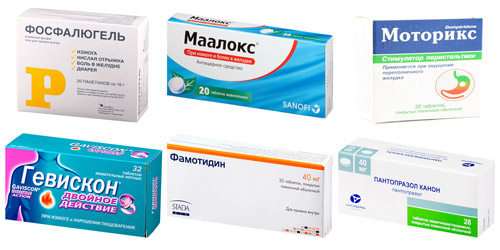 медикаментозная терапия: Фосфалюгель, Маалокс, Моторикс, Гевискон, Фамотидин, Пантопразол