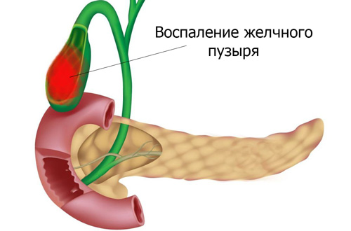 воспаление желчного при холецистите