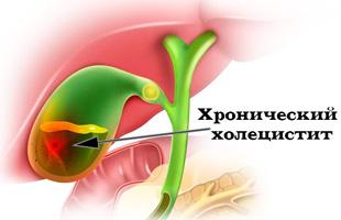 Хроническое воспаление желчного пузыря